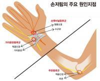 주관증후군, 가이욘관증후군, 손목터널증후군! 10일 연휴 주부 괴롭힌다'