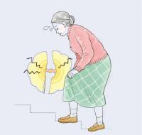 [메디체크]환절기 찬바람 불면 더 심해지는 관절염